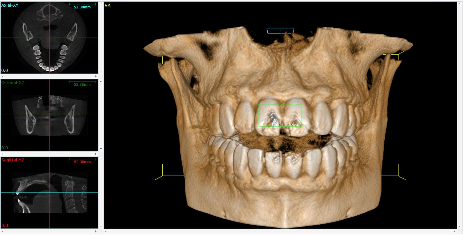 Cone Beam 3D Imaging Seneca, SC